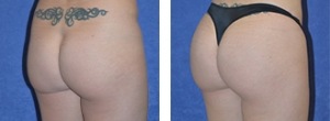36 y/o female, 5 feet 4 inches, 140 lbs, 6 months status/post Brazilian Butt Lift (Fat transfer to buttocks approx 1,260cc total)