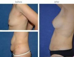 49 year old female, 1 year status/post tummy tuck with muscle repair, liposuction of abdomen/flanks and breast augmentation with submuscular placement of implants (397cc left, 371cc right)