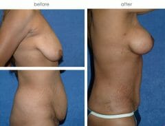 40-year old female, 3 months status post Abdominoplasty with muscle repair, Liposuction of Abdomen and Flanks, Bilateral Full Mastopexy with submuscular placement of breast implants. (350cc left, 325cc right)