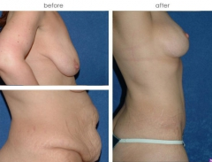 35-year old female, 1 year status post Abdominoplasty with Muscle Repair, Liposuction of the Abdomen and Flanks, Bilateral Full Mastopexy with Reduction and submuscular placement of breast implants. (371cc left, 339cc right)