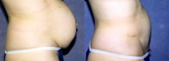 39-year-old female, 5 years status/post tummy tuck (Abdominoplasty) with abdominal hernia repair (Ventral Hernia)