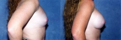27 year old, 3 pregnancies, 1 year status, post submuscular placement of implants (475cc-right, 460cc-left)
