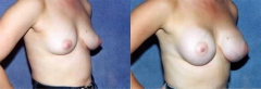 3 months post, submammary (above muscle) placement of implants (340cc-right, 310cc-left)