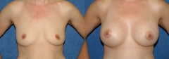 49 year old female 1 year status/post submuscular placement of implants ( 397cc Left, 371cc Right).