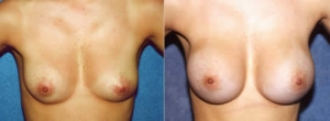 28 year-old female 1 year status/post submuscular placement of implants. (265cc-Left 275cc-Right)