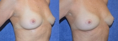 """58-year-old female, 5'6"""", 138 lbs, 1 month status/post Autologous Breast Augmentation with Structural Fat Grafts (approx 545cc on the left breast and 420cc on the right breast)"""