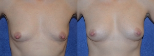 "35 year old female, 5'2"", 120 lbs, 9 months status/post Autologous breast augmentation with structural fat grafts (approximately 430cc in the right breast and 460cc in the left breast)"