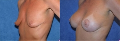 """40 year old female, 5'8"""", 115 lbs, 1 year 9 mos status/post circumareolar breast lift with placement of bilateral submuscular implants (425cc Left, 425cc Right)"""