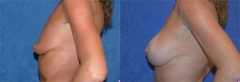 "40 year old female, 5'8"", 115 lbs, 1 year 9 mos status/post circumareolar breast lift with placement of bilateral submuscular implants (425cc Left, 425cc Right)"