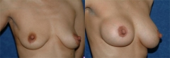 """49 year old female, 5'3"""", 110 lbs, 2 years status/post circumareolar breast lift with placement of bilateral submuscular implants (345cc Left, 380cc Right)"""