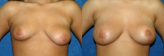 """26 Y/O FEMALE, 5'6"""", 128 lbs, 1 CHILD. 1 MO. S/P SUBMUSCULAR PLACEMENT OF HIGH PROFILE GEL IMPLANTS, 350cc RIGHT AND 475cc LEFT, CIRCUMVERTICAL MASTOPEXY WITH J-EXTENSION (RIGHT) AND CIRCUMAREOLAR MASTOPEXY (LEFT)"""