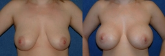 """28 Y/O FEMALE, 5'5"""", 145 lbs, 1 CHILD. 6 MOS. S/P SUBMUSCULAR PLACEMENT OF HIGH PROFILE GEL IMPLANTS, 600cc BILATERALLY WITH CIRCUMAREOLAR PIN-WHEEL MASTOPEXY"""