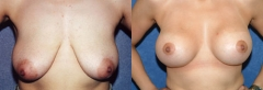29 year old female, 10 years status/post bilateral vertical mastopexy with small reduction and 5 months status/post bilateral submuscular placement of silicone gel implants. (400cc-right, 400cc-left)