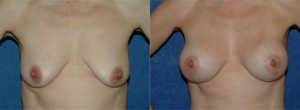 "40 year old female, 5'4"", 116 lbs, 10 months status/post bilateral breast lift with submuscular placement of implants (230cc Left, 230cc Right)"