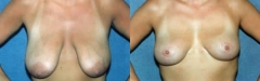 34-year-old female, pre and post vertical uplift (LeJour Mastopexy) no implants