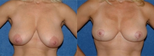 45 year old female, 5'3, 130 lbs, 4 months status/post bilateral reduction mammoplasty with breast lift