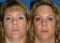 3 year follow up after Brow lift with upper blepharoplasty.