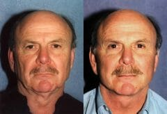 58-year-old male, 3 months post Bilateral Upper Eyelid Surgery (Blepharoplasty), Face and Neck Lift.