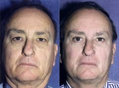 58-year-old male, 1.5 years status/post Bilateral Upper and Lower Eyelid Surgery (Blepharoplasty)