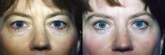 50-year-old female, two years status/post bilateral upper and lower eyelid surgery (Blepharoplasty)