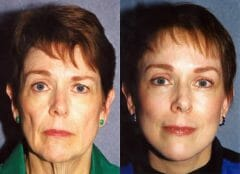 61-year-old female, 6 months status/post Face neck and Brow Lift