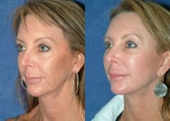 52 year old female 9 months status/post face and neck lift with structural fat grafts to multiple areas of the face