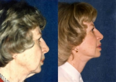 68-year-old female, Facelift, Necklift, and Upper & Lower Eyelid Surgery