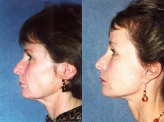 50-year-old female, 1-year status/post Face, Neck and Coronal Brow Lift