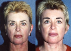 55-year-old female, 1-year status/post Face, Neck, Endoscopic Brow Lift, Lower Eyelid Blepharoplasty