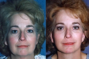 49-year-old Female with a Facelift, Necklift, Upper & Lower Eyelid Surgery and Chin Augmentation with Implant