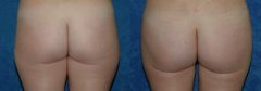 """32 Y/O FEMALE, 5'2"""", 135 lbs. 4 MOS. S/P LIPOSUCTION WITH VASER ASSISTED ULTRASOUND OF LATERAL, MEDIAL AND POSTERIOR THIGHS, LATERAL BUTTOCKS, LATERAL FLANKS, ABDOMEN AND INNER THIGHS (3,800cc REMOVED)"""