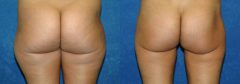 """29 Y/O FEMALE, 5'3"""", 108 lbs. 1 YR S/P LIPOSUCTION WITH VASER ASSISTED ULTRASOUND TO LATERAL FLANKS, LATERAL BUTTOCKS, AND LATERAL/POSTERIOR/MEDIAL THIGHS (2,000cc REMOVED)"""
