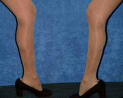 """50 Y/O FEMALE, 5'2"""", 106 lbs, 4 MOS. S/P LIPOSUCTION WITH VASER ASSISTED ULTRASOUND TO CIRCUMFERENTIAL LOWER LEGS, INCLUDING CALVES AND ANKLES (1,250cc REMOVED)"""