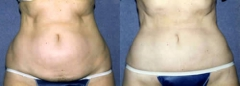 59-year-old female, 1-year status/post tumescent Liposuction of the abdomen and flanks – 2155 cc removed.