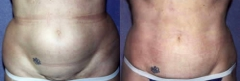 54-year-old female, 1-year status/post tumescent Liposuction of abdomen and flanks (2575 cc)