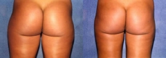 31-year-old female, 3 months status/post tumescent ultrasound Liposuction of the thighs, flanks and buttocks (2325 cc removed)