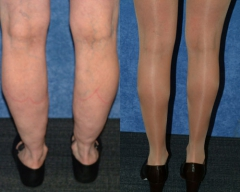 "50 Y/O FEMALE, 5'2"", 106 lbs, 4 MOS. S/P LIPOSUCTION WITH VASER ASSISTED ULTRASOUND TO CIRCUMFERENTIAL LOWER LEGS, INCLUDING CALVES AND ANKLES (1,250cc REMOVED)"