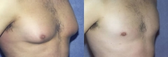 "27 year old male, 5'7"", 148 lbs, 6 months status/post correction of gynecomastia with suction assisted lipectomy, Vaser assisted ultrasound and excision of breast tissue"