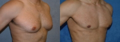 27-year-old male, 1-year status/post tumescent ultrasonic Liposuction of breast with additional bilateral removal of breast tissue.