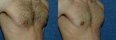 "42 Y/O MALE, 5'9"", 167 lbs. 1 YR S/P LIPOSUCTION WITH VASER ASSISTED ULTRASOUND TO CORRECT BILATERAL GYNECOMASTIA"