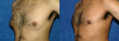 """23 Y/O MALE, 5'7"""", 150 lbs. 3 MOS. S/P LIPOSUCTION WITH VASER ASSISTED ULTRASOUND TO THE BREASTS WITH ADDITIONAL BILATERAL REMOVAL OF BREAST TISSUE"""
