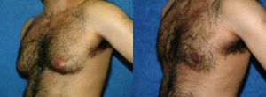 """36 Y/O MALE, 5'10"""", 165 lbs. 4 MOS. S/P TUMESCENT LIPOSUCTION WITH VASER ASSISTED ULTRASOUND TO THE BREASTS WITH ADDITIONAL BILATERAL REMOVAL OF BREAST TISSUE"""