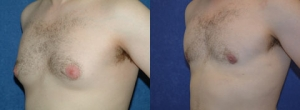 28 year old male 6 months status/post correction of gynecomastia with Vaser assisted liposuction and excision of breast tissue.