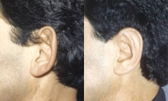 44-year-old male, 1-year status/post bilateral corrective ear surgery. (otoplasty)