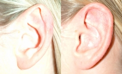 26-year-old female, 2-months status/post bilateral otoplasty with correction of bilateral congenital ear deformities.(otoplasty)