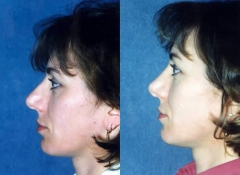 37 year old Female, 1 year post corrective Rhinoplasty