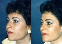31-year-old Female, one year post corrective Rhinoplasty