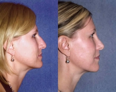 35-year-old female, 1-year status/post corrective nasal surgery (Rhinoplasty)