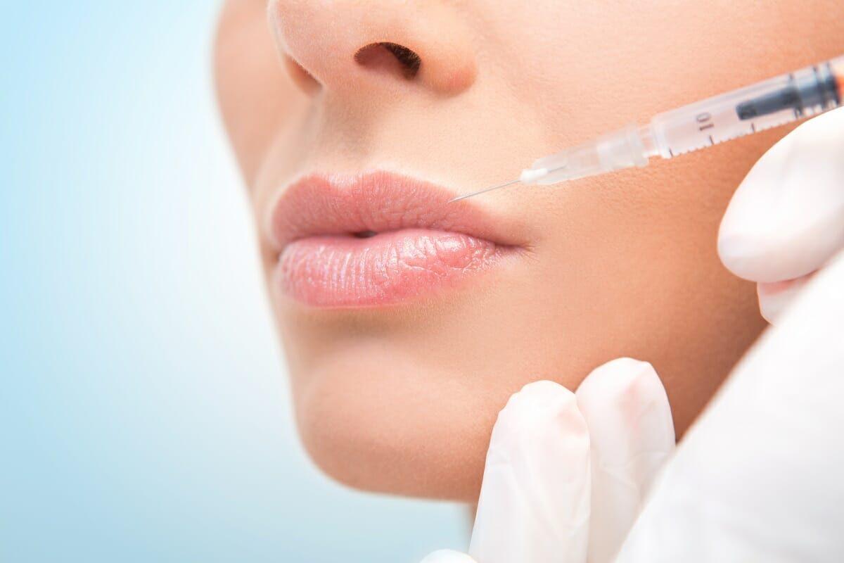 Minimize Side Effects of Dermal Filler Injections